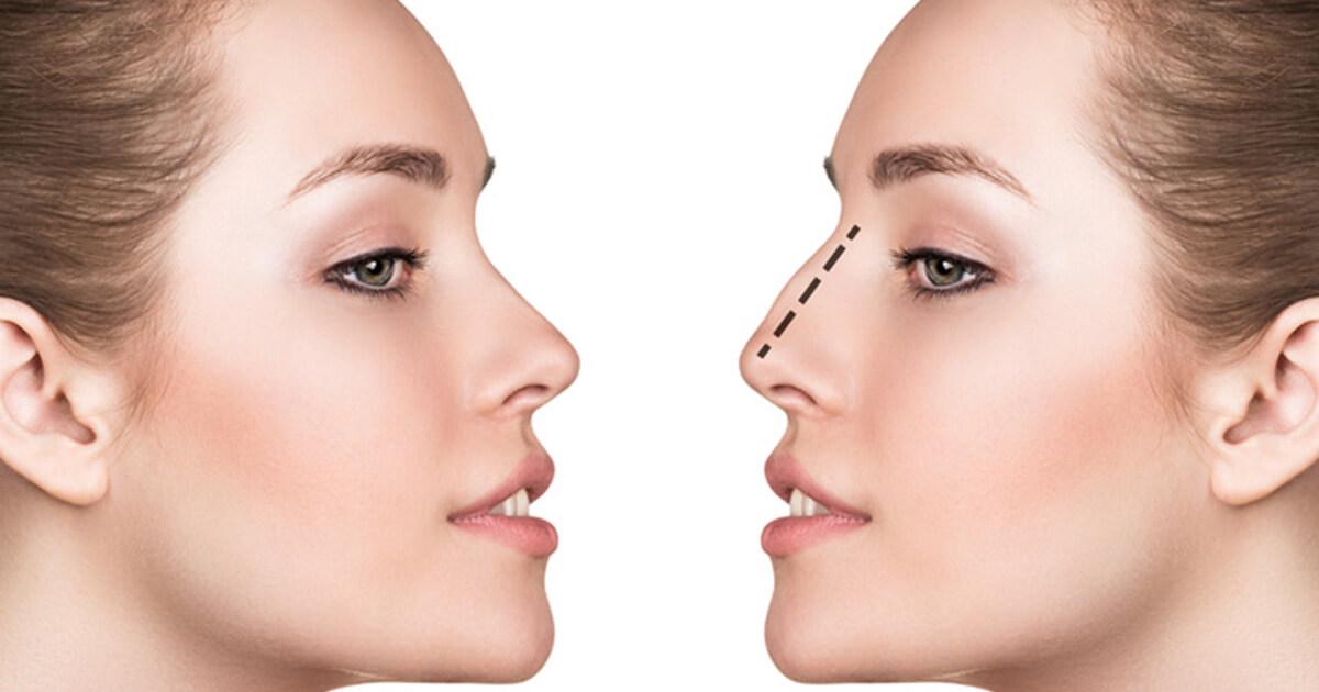 rhinoplastie chirurgies.ch suisse hongrie chirurgie du nez
