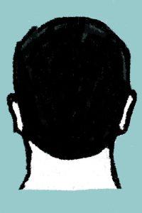 FUE - chirurgies.ch - suisse - greffe de cheveux implants capillaires